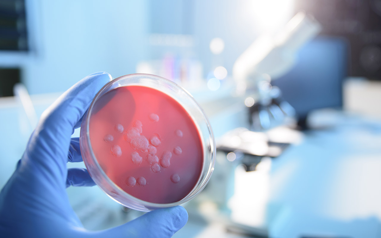 When Coronavirus May Trigger SEC Disclosure Requirements